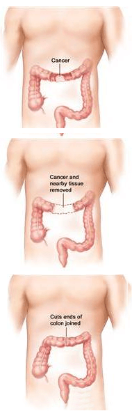 Laparoscopic Colon Resection for Cancer