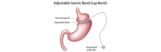 Are you qualified for a lap band surgery?