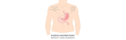 How much weight can I lose from Gastric Sleeve Surgery?