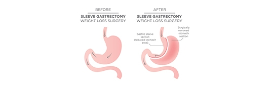 What to expect before and during gastric bypass surgery?